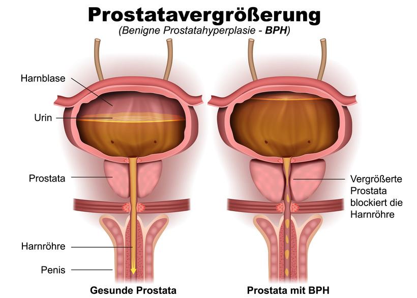 Prostata | Aufbau, Lage, Funktion und häufige Erkrankungen