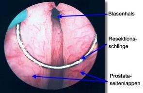 TURP (Transurethrale Resektion der Prostata) - Ablauf und